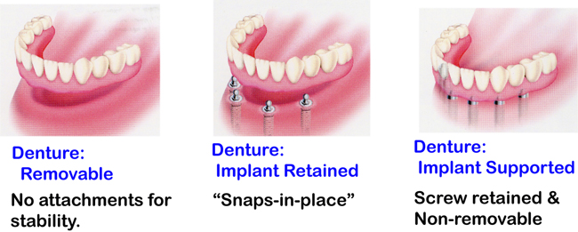 Dentures dentist st croix vi dental education library 3 laugh smile and speak with confidence and comfort solutioingenieria Images
